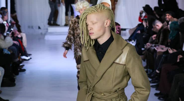 Shaun Ross is the first professional male model with albinism.